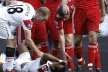 Luis Nani has a deep notch leg wound