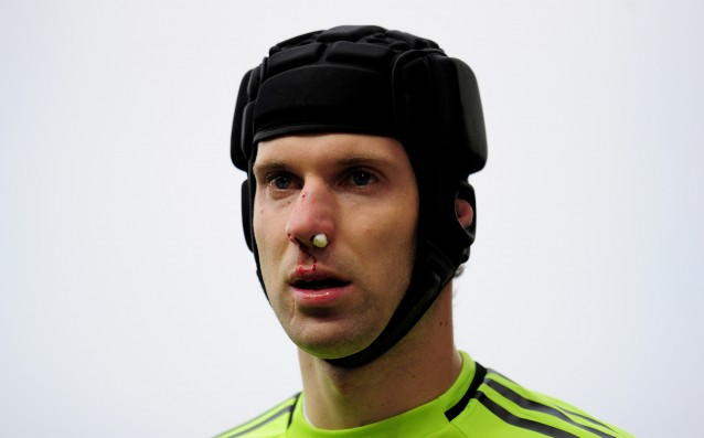 Cech wants to remove his helmet, the doctors still do not let him